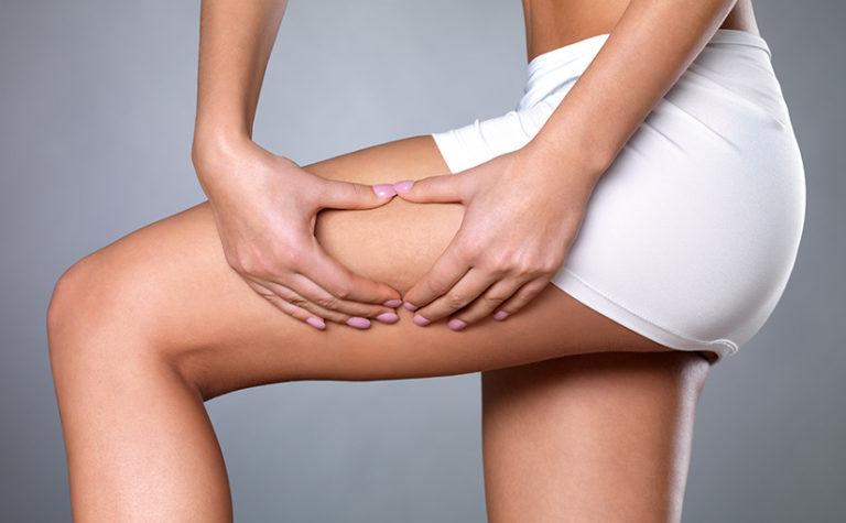Cellulite adiposita corpo - Dott. Massimo Luni - Medicina estetica Torino