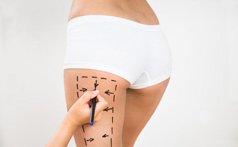 Chirurgia mini invasiva - Dott. Massimo Luni - Medicina estetica Torino