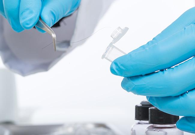 Test capello e cuoio - Dott. Massimo Luni - Medicina estetica Torino