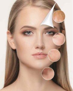 Fili di trazione viso: solleva e armonizza i tessuti