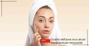 Cicatrici dell'acne | Dott. Massimo Luni